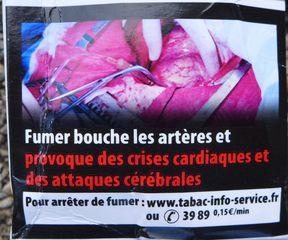 Warnhinweis auf französischer Zigaerettenschachtel #6 - rauchen, Krebs, Lungenkrebs, cancer, mortel, poumon, fumer, Gesundheitsschädigung, Umwelt, arrêter