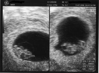 Ultraschall 2 - Ultraschall, Zwillinge, Schwangerschaft, zweiter Monat, Uterus