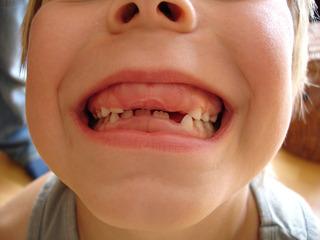 Zahnlücken - Mensch, Zähne, biologische Vorgänge, Gebiss, Zahnwechsel, Zahnlücke, Milchgebiss, Frontzahn, Frontzähne