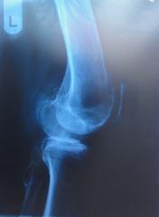 Röntgenbild 1 - Röntgen, Röntgenbild, Röntgenaufnahme, Radiologie, Knie, links, Kniegelenk, Knochen, Kniescheibe, Diagnose, Röntgenstrahlen, Knorpel, Physik, Elektromagnetismus