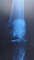 Röntgenbild2 - Röntgen, Röntgenbild, Röntgenaufnahme, Radiologie, Knie, links, Kniegelenk, Knochen, Kniescheibe, Diagnose, Röntgenstrahlen, Knorpel, Physik, Elektromagnetismus