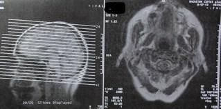 CT - Computertomografie, Computertomographie, CT, Schädel, Radiologie, Schichtaufnahme, Kopfaufnahme, Schicht, Knochen, Untersuchungsmethoden, Medizin