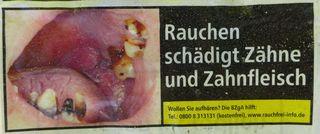 Gefahrenhinweis: Rauchen schädigt  - Hinweis, rauchen, Gefahr, Gesundheit, Zähne, Zahnfleisch