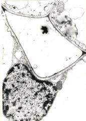 Interzellularbildung im Schwammgewebe von Euphorbia pulcherrima # 1 - Euphorbia pulcherrima, Weihnachtsstern, Wolfsmilchgewächse, schizogene Interzellularbildung, Primärwand, Plasmodesmos, Mitochondrien Ribosomen, Zellkern